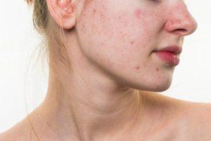 acne ar